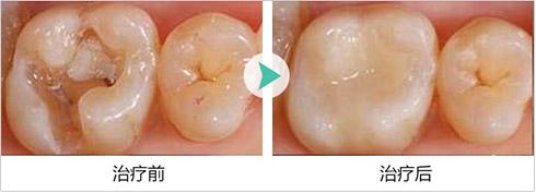 补牙案例前后对比图