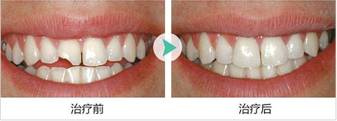牙齿美容前后对比图