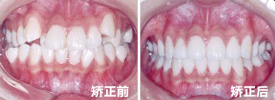 重庆牙齿整形多少钱_牙齿矫正多少钱 - 牙齿正畸常识 - 上海拜博口腔医院