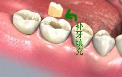 烤瓷牙什么材料好_虫牙怎么治疗 - 龋齿 - 温州泰康拜博口腔医院【官方网站】